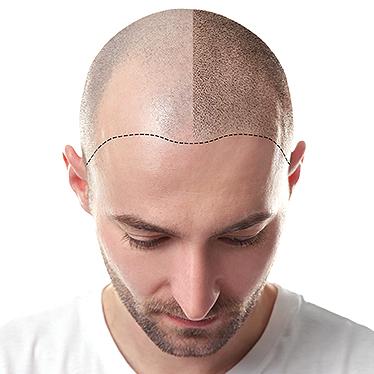 کاشت مو طبیعی (پیوند مو)