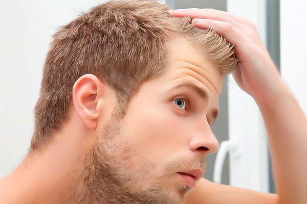 درمان ریزش مو (PRP-PRGF)