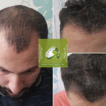 کاشت مو در کرج