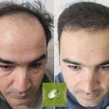 کاشت مو در کرج | بالای سر