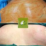 تزریق چربی در کرج | در ناحیه سینه