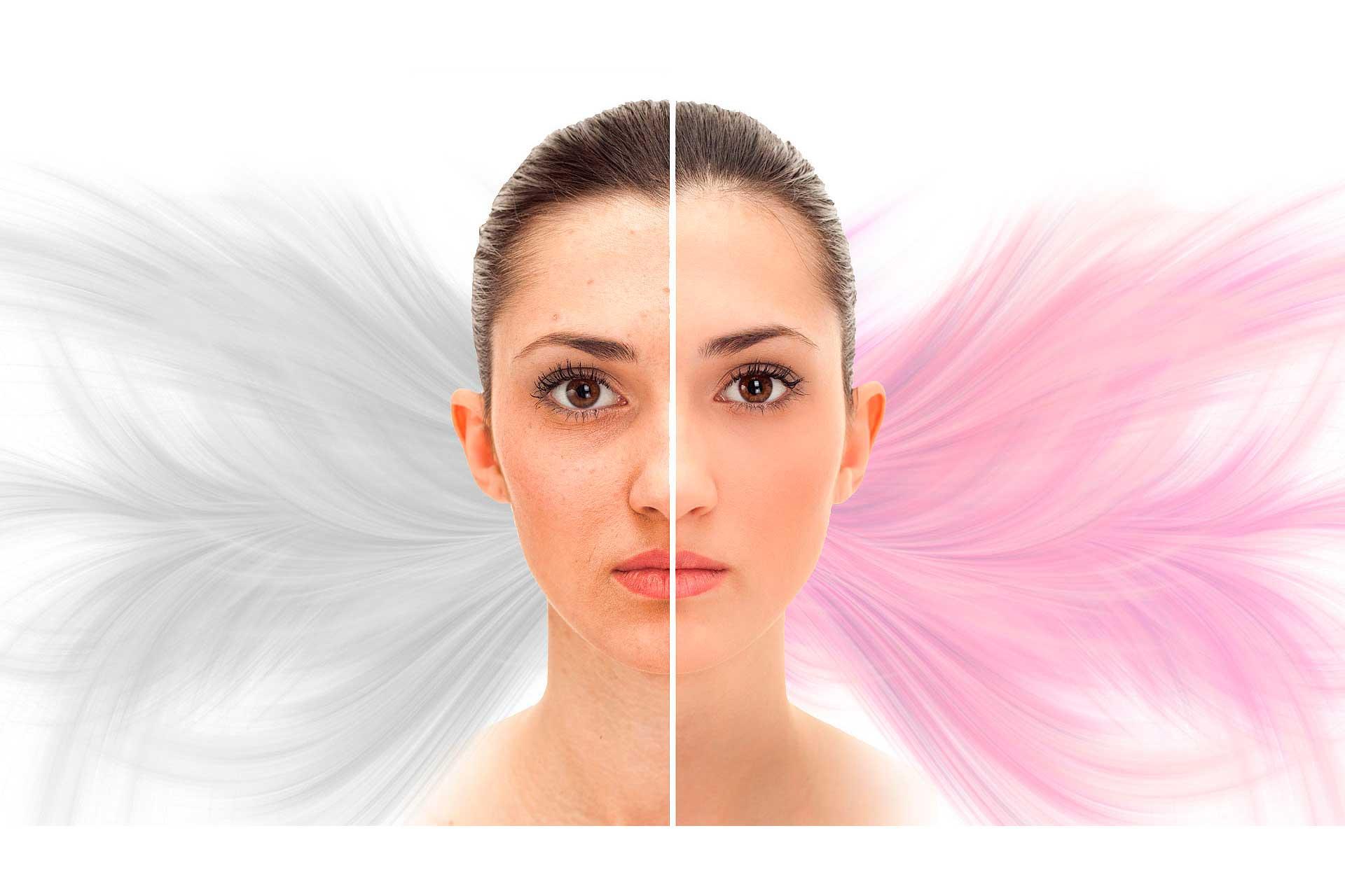 هیدرودرمی و جوانسازی پوست کرج