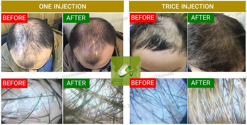 کاشت مو در کرج | PRGF